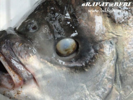 The eye become disconnected from eye ball in secondary stage
